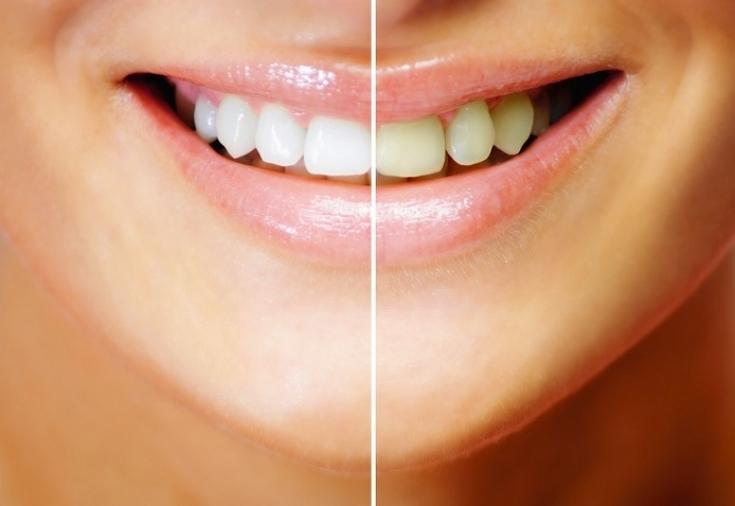 Выравнивание и отбеливание зубов