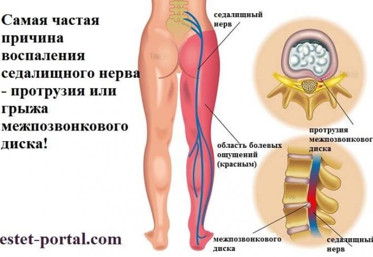 Картинки по запросу Защемление седалищного нерва: лечение в домашних условиях