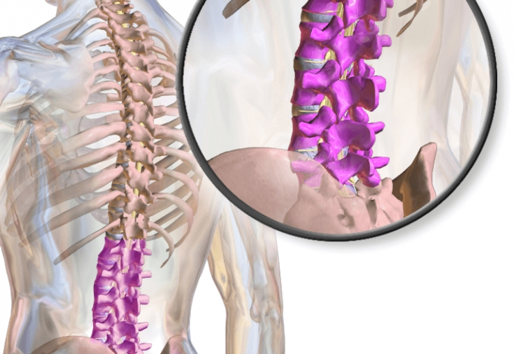 Стеноз позвоночного канала лечение без операции