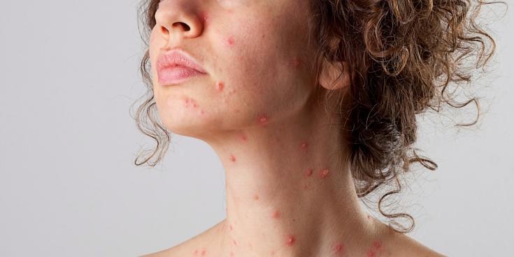 5 детских заболеваний, которые опасны для взрослых