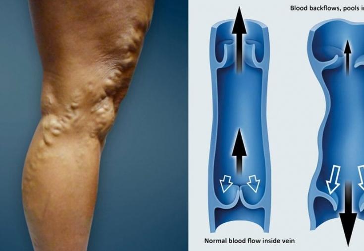 фото варикоза нижних конечностей ног