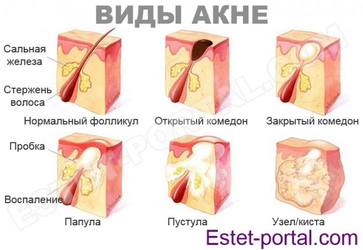 Акне у женщин репродуктивного возраста: особенности заболевания ...