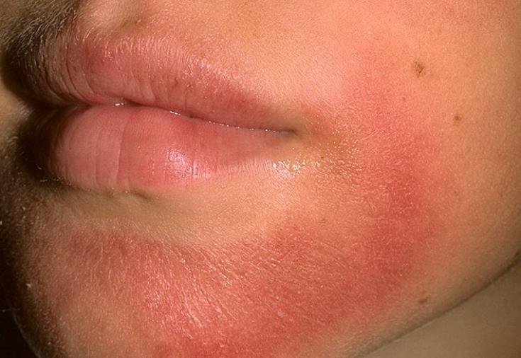 дерматит фото аллергический