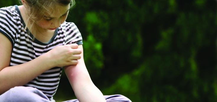 Аллергия на укусы насекомых: симптоматика, причины, диагностика и лечение