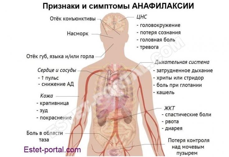 Анафилактическая реакция: не пропустите симптомы анафилаксии