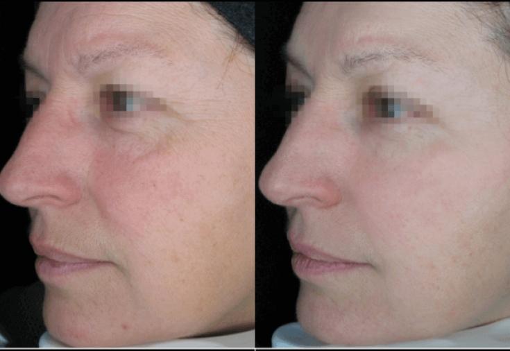 Skin therapy anti age