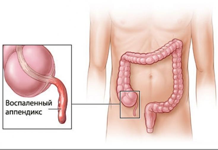 Аппендицит: причины и симптомы, которые нельзя игнорировать