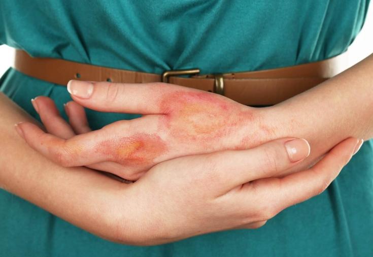 дерматит у взрослых симптомы и лечение фото
