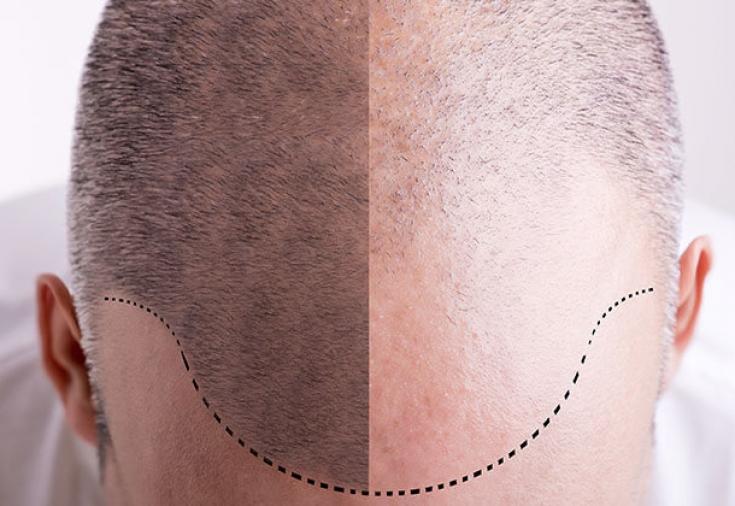 Новые методики восстановления волос