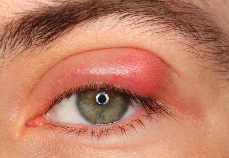 Блефарит: симптомы и лечение. Что делать, когда воспаляются веки ...