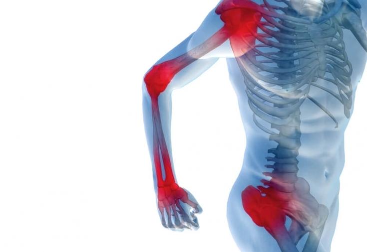 Фото боль в суставах последствия артрита коленного сустава