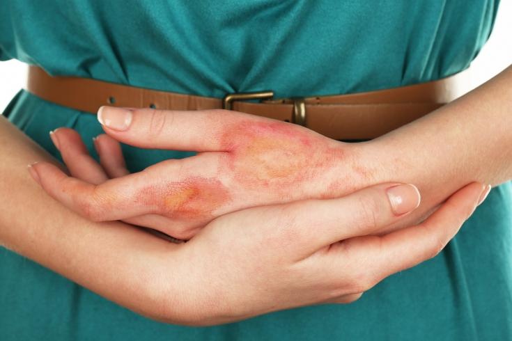 Чем лечить ожог на коже рук