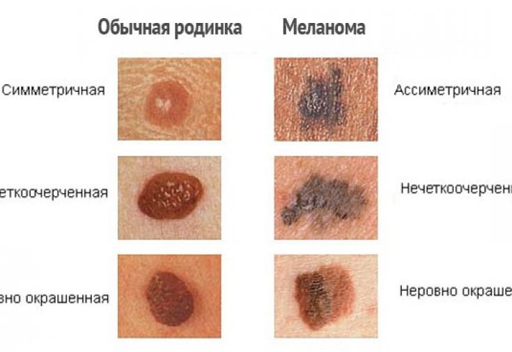меланома кожи фото