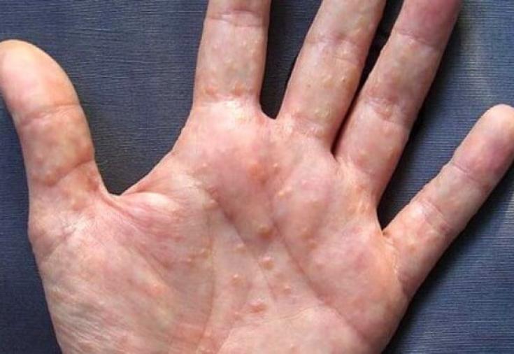 Что может стать причиной дисгидроза кожи? - Estet-Portal