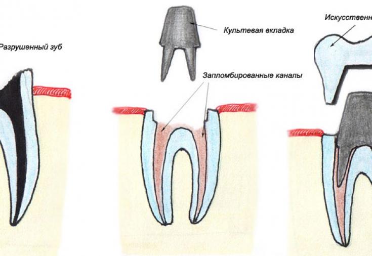 Что необходимо знать об искусственных коронках для зубов