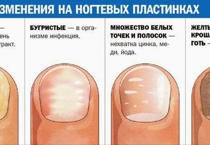 Деформация ногтей на руках и на ногах, почему ногтевые пластины искривляются, фото и лечение