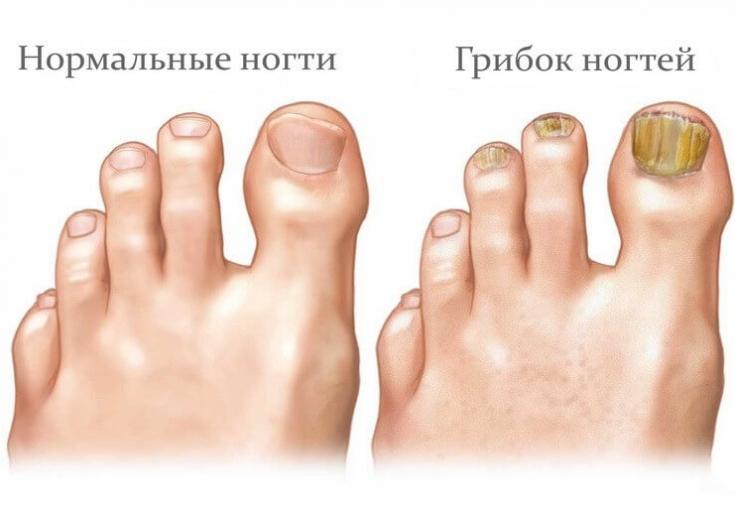 Грибок на ногтях в домашних условиях отзывы 91