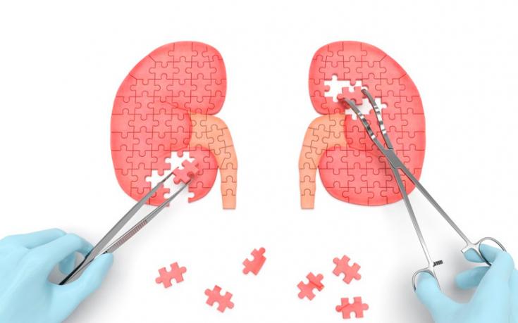 Почечная артериальная гипертензия (гипертония): причины ...
