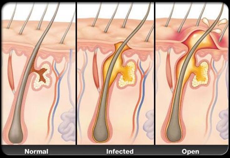 Гидраденит – инфекционное воспалительное заболевание подмышечных впадин