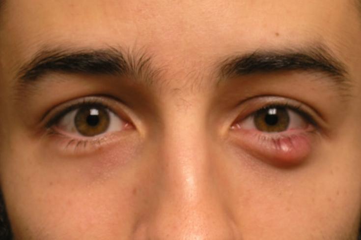 Горошина на глазу: особенности диагностики и лечения халязиона
