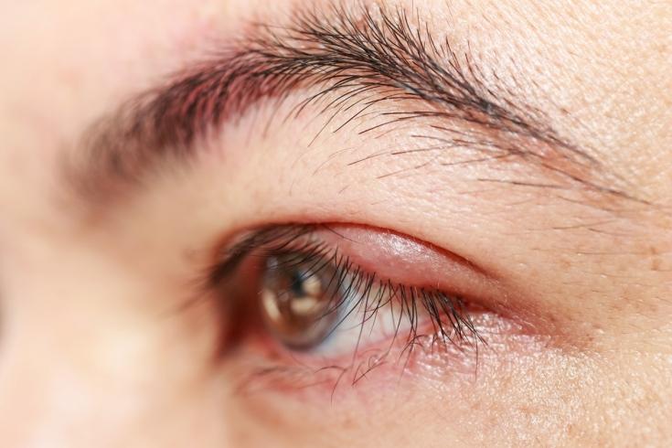 Хламидийный конъюнктивит: все, что нужно знать о воспалении глаз