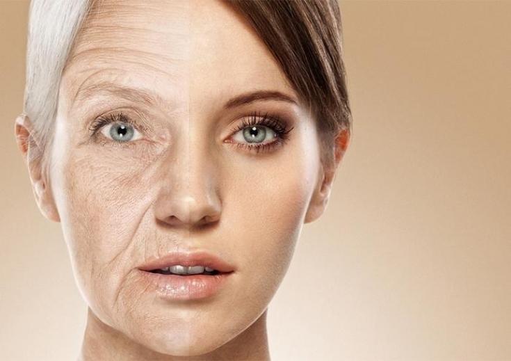 Juvéderm® VOLIFTтм – препарат номер один при преждевременном старении