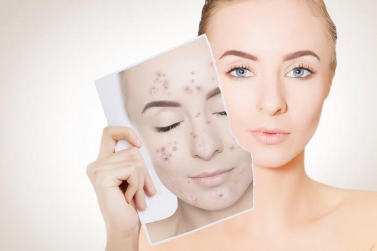 Белые точки на лице: что это и как избавиться
