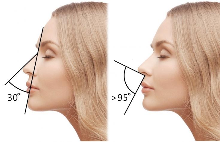 Как изменить форму носа без операции: возможности инъекционной коррекции