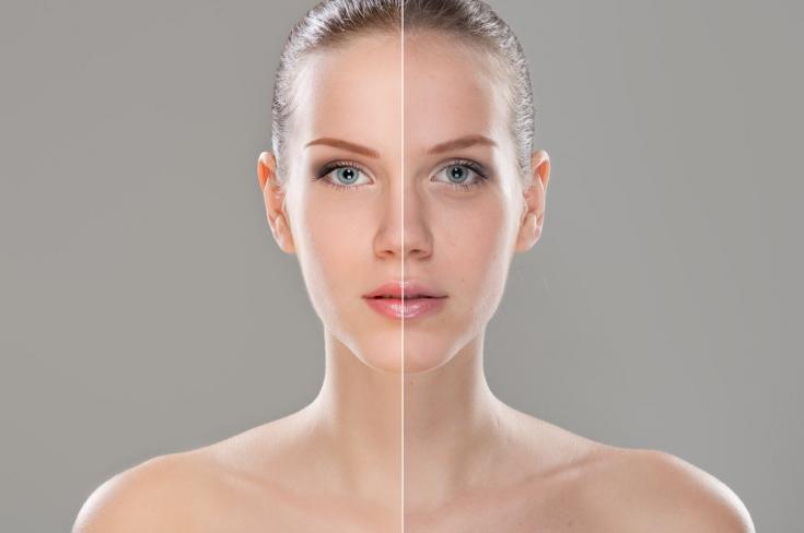 Как правильно подобрать препараты для  биоревитализации кожи, предупреждающие хроностарение и фотостарение