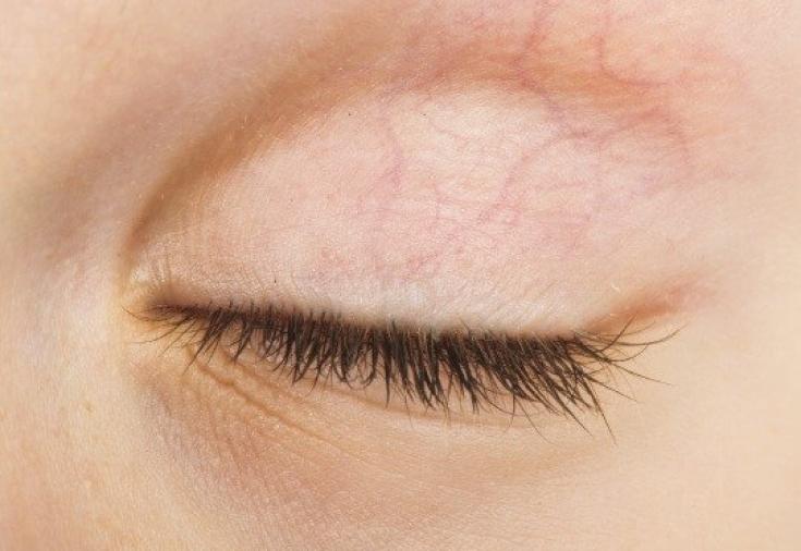 иопидин глазные капли