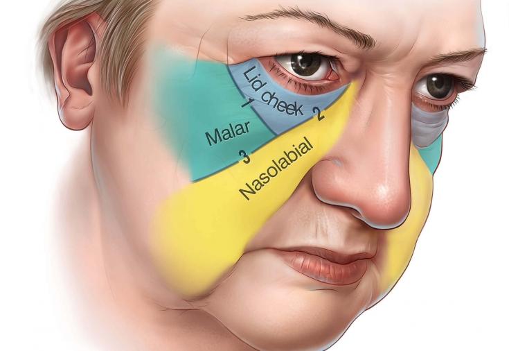Как убрать мешки под глазами: эффективные хирургические методы ...