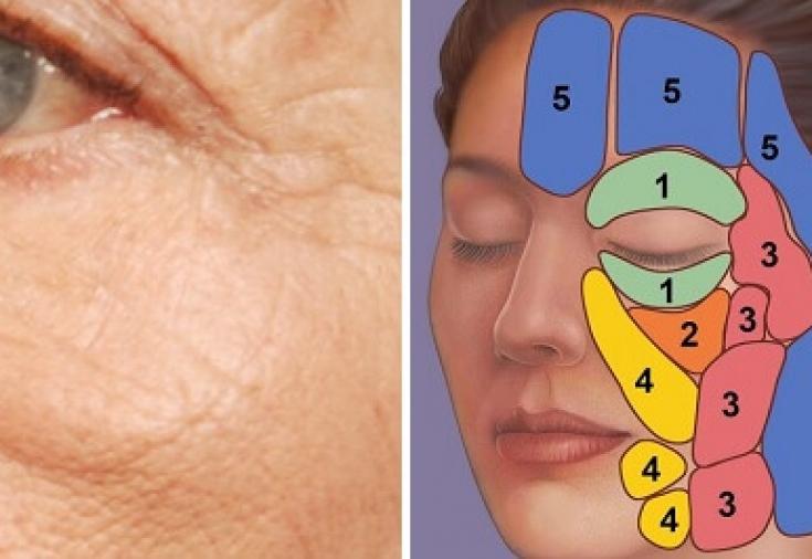 Как убрать суфы на лице: причины появления малярных мешков под ...