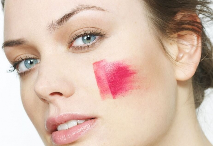 Розацеа лица: что такое, причины, лечение