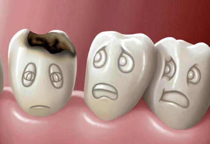 Методы диагностики кариеса зубов: как можно распознать патологию