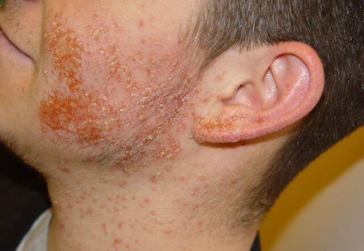 Поражения кожи - Стафилококковые болезни - Материалы, >