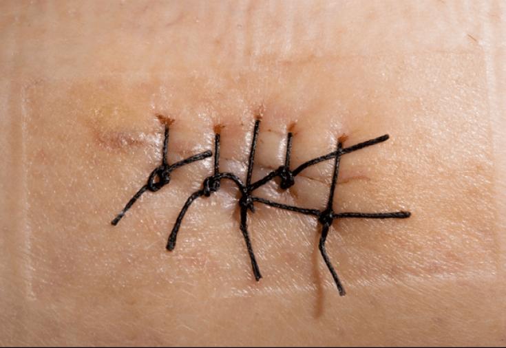 Как сделать чтобы от раны не остался шрам