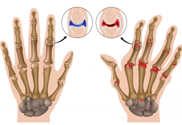 повреждение плечевого сустава, травма, перелом