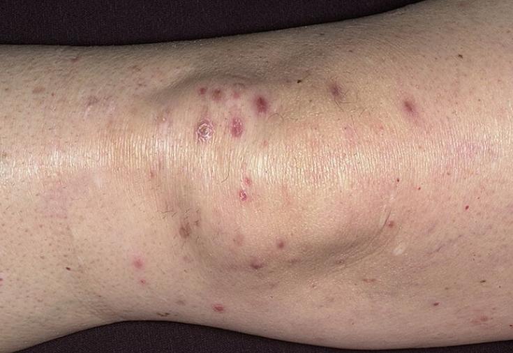 Высыпание на коже при лимфоме 93