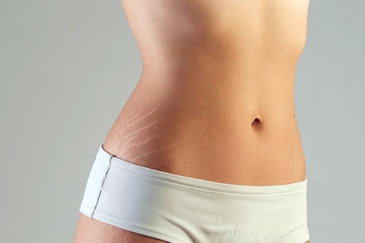 Комбинация косметологических методик при лечении растяжек на коже