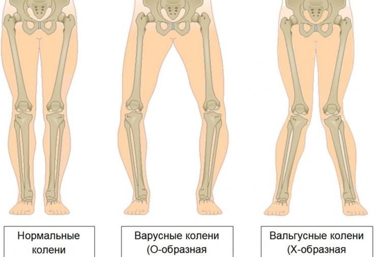 Х-образная деформация коленного сустава пятнисто - папулезная сыпь, боли в коленных суставах, лимфоузлы увеличены