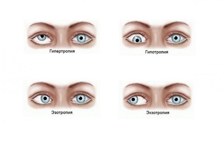 Косоглазие: виды, причины, лечение - Estet-Portal
