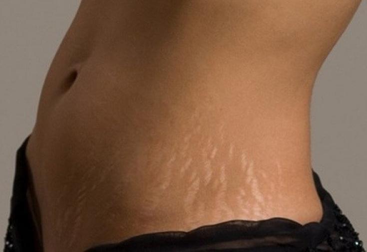 Как подтянуть кожу на животе после похудения: упражнения