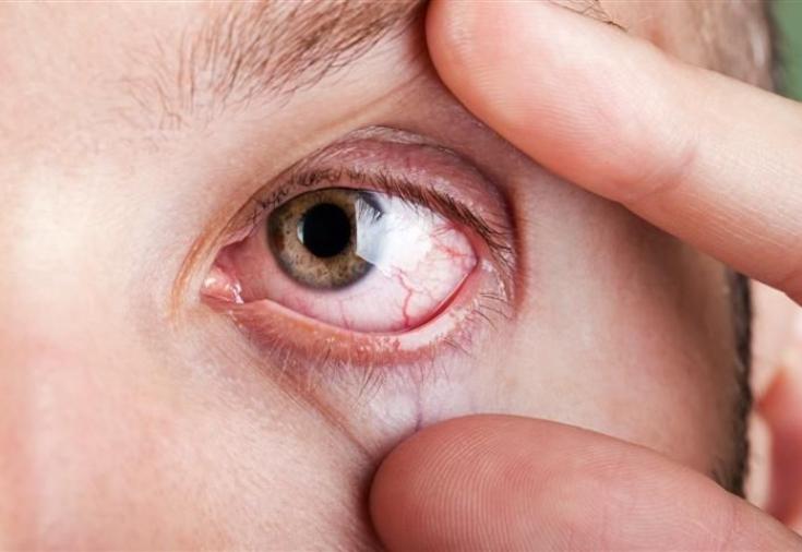 Слезотечение глаз чем лечить в домашних условиях