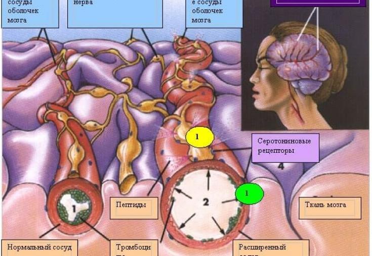 При мигрени может быть температура 37