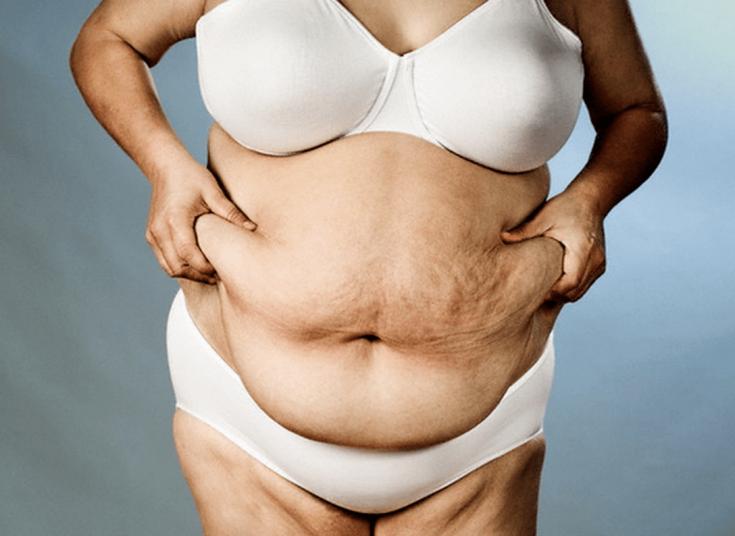 Лишний вес и проблемы со здоровьем