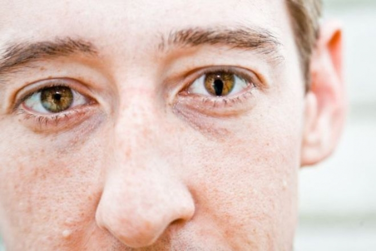 О чем расскажут кошачьи глаза: диагностика и лечение колобомы
