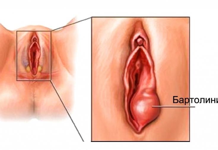 органы женские фото