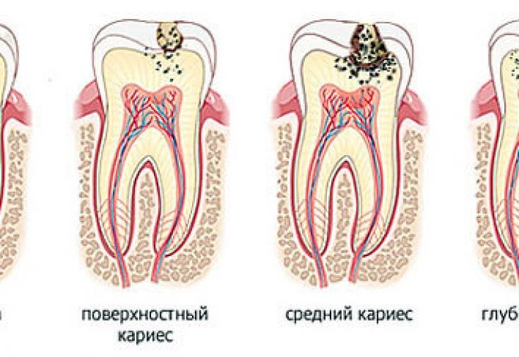Особенности кариеса молочных зуб