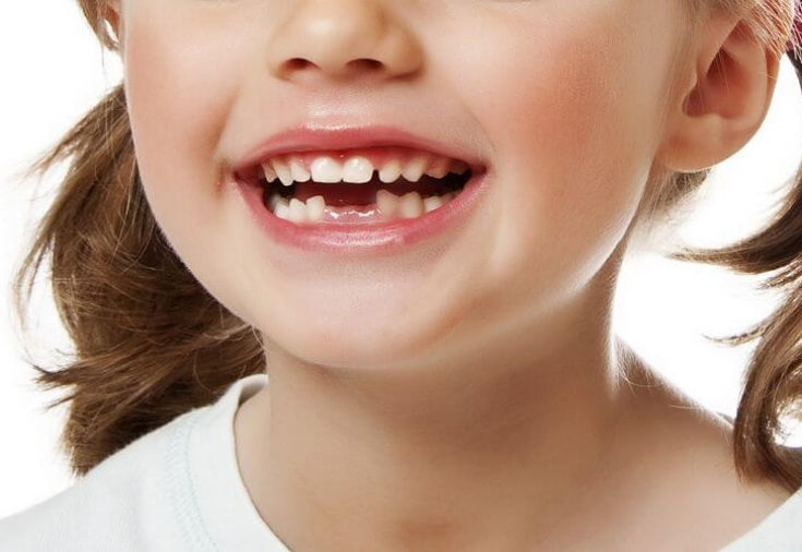 Лечение молочных зубов Волгоград