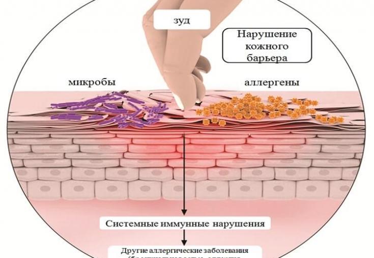 Рецепты при атопическом дерматите у взрослых